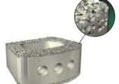 Thermoplast ermöglicht einzigartige Technologie zur Wirbelkörperfusion