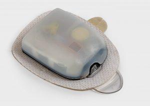 Ein Beispiel für ein lasergeschweißtes Gehäuse: Das Messgerät für Blutzuckerwerte (Bildquelle: LPKF)