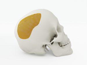 Bei der Reinigung von aus Kunststoff gefertigten Implantaten wird die quattroClean-Schneestrahlreinigung ebenfalls eingesetzt. (Bildquelle: istock.com/Belekekin)