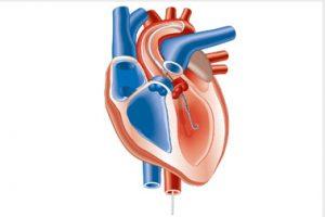 Abb. 3: Herzpumpe von Abiomed [4]