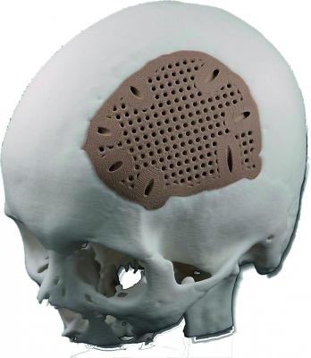 Implantat schädeldecke