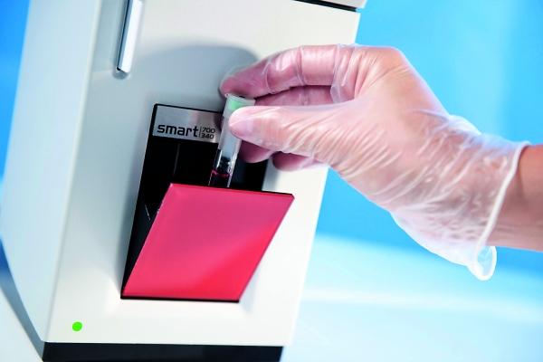 Die komplette Blutuntersuchungseinheit wird in das Analysegerät eingeführt und dort genau kontrolliert. (Bildquelle: Eurolyser Diagnostic)