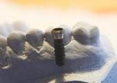 3D-Konfokalmikroskop µsurf custom